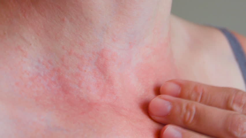 Woman scratch the itch with hand, Neck. Red spots on the neck, allergies, psoriasis, insect bite. Malaria. Sunburn. Sun burn | Shutterstock HD Video #27082921