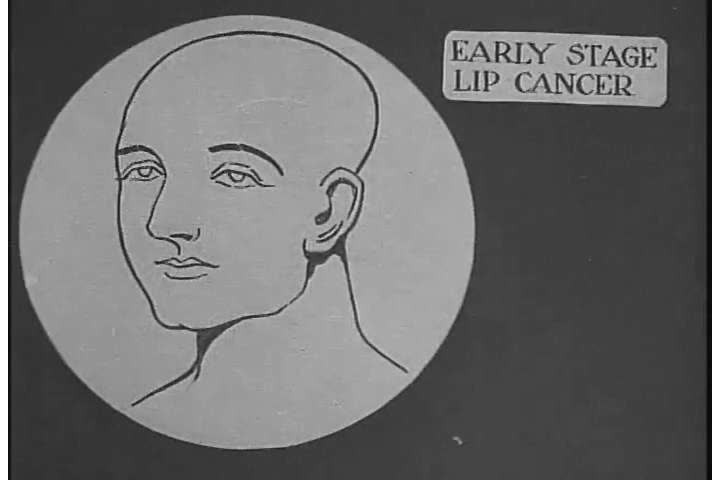 1920s: Animated diagrams show how cancer spreads in the human body in 1921.