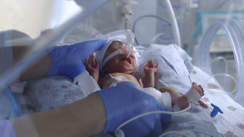 Premature baby in a bed incubator under the supervision of doctors