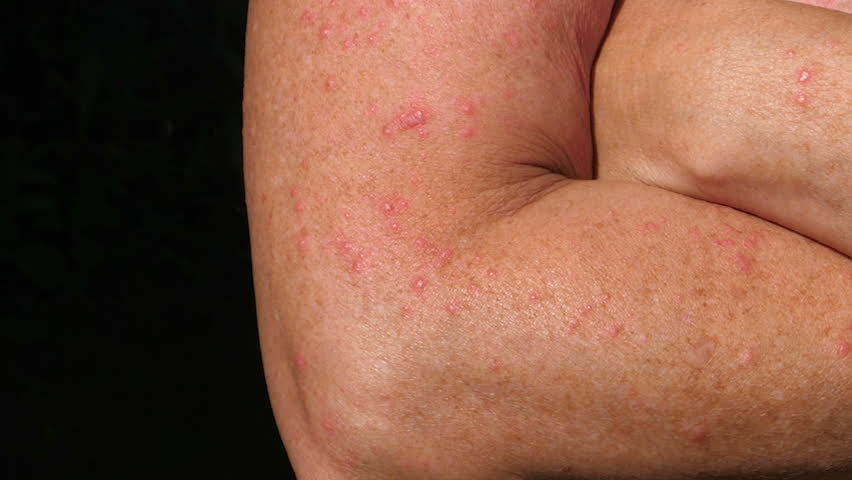 JUNE 6, 2017 SWEDEN - Close-up of arms with blisters and rash from sunbathing too much. | Shutterstock HD Video #27941329