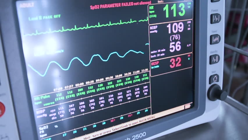 Heart Rate Monitor in Icu Stock Footage Video (100% Royalty-free) 28412140    Shutterstock