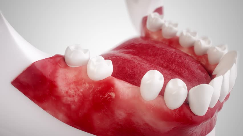 Dental implant - High end 3D animation In this animation film, you will see all the steps for using a dental implant.  The film was created with the greatest possible care. Royalty-Free Stock Footage #28809328