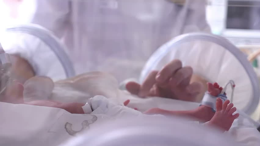 a newborn in incubator, intensive hospital therapy: CCU, ICU, ITU. The tiny baby child moves his fingers, foot and leg vigorously., Closeup Royalty-Free Stock Footage #30114193