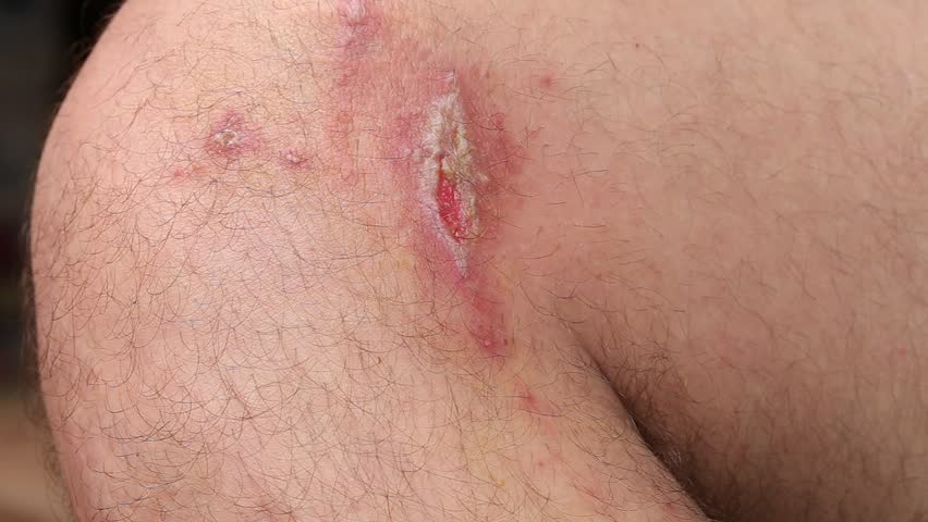 Irritant contact dermatitis at man leg, close up.. Pederus-dermatitis - Allergic reaction to the blood type of beetles Paederus, characterized by vesicular dermatitis   Shutterstock HD Video #30389857