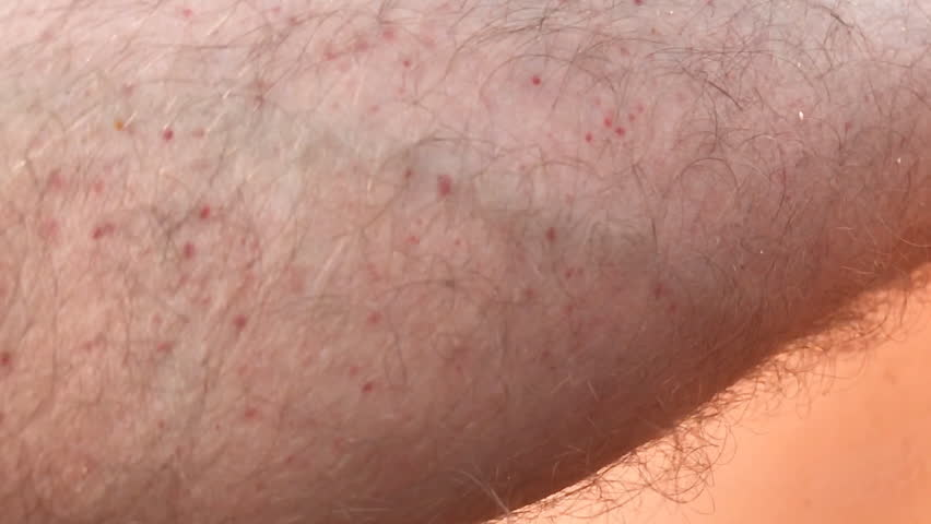Bite of the insect allergy on the leg ,Slow motion Handheld camera Balanced Steady shot  | Shutterstock HD Video #30888388