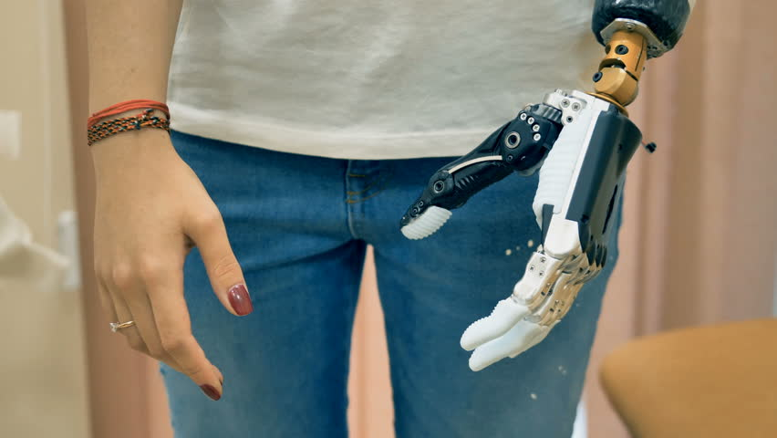 Robotic prosthesis arm connected to a disabled woman hand. 4K. | Shutterstock HD Video #32296993
