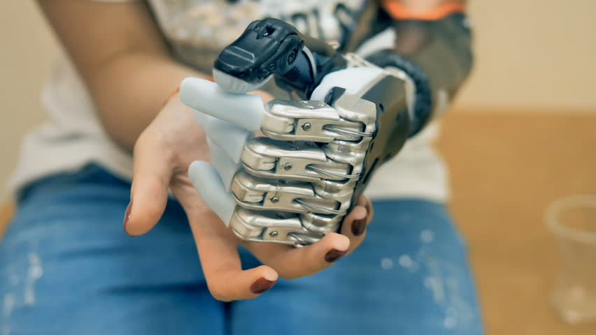 Amputee disabled woman testing robotic prosthesis. 4K.