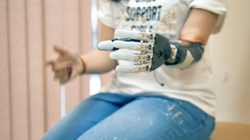 An amputee woman demonstrates her bionic hand. 4K.