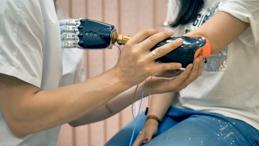 Doctor help amputee, disabled woman fix robotic prosthesis on a limb. 4K.