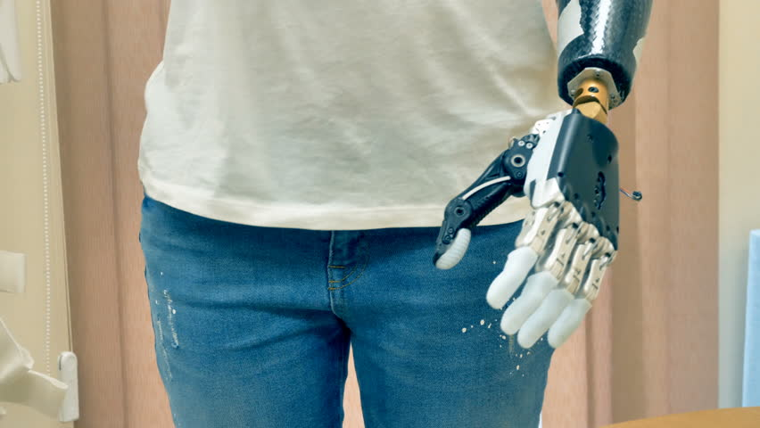 Young disabled woman with amputated hand using robotic prosthesis. 4K. | Shutterstock HD Video #32297089