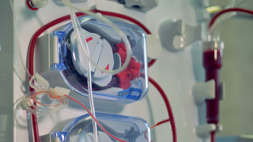 Modern medical equipment for hemodialysis procedure. Modern medical equipment concept. | Shutterstock HD Video #34262086
