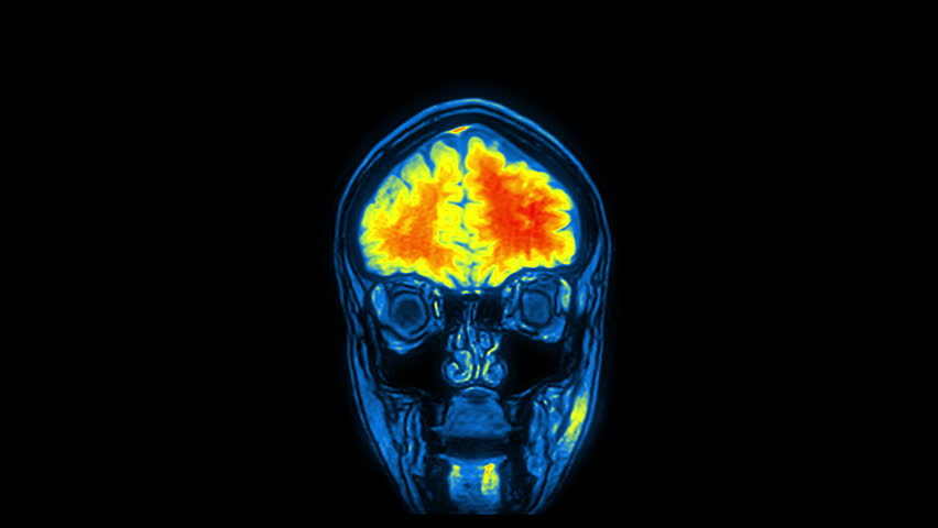 Computed medical tomography MRI upscaled scan of healthy young female head. Front view. Discrete slices. Red, yellow, blue on black background. (av44004c) | Shutterstock HD Video #34270684