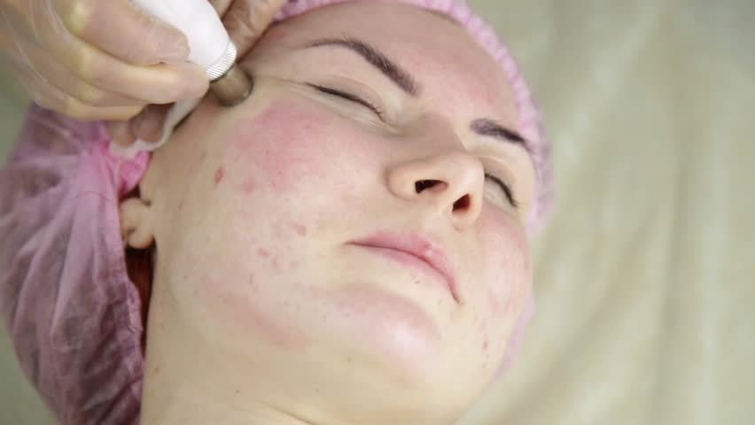 Young woman with problem skin getting a cosmetic procedures with medical equipment | Shutterstock HD Video #34903546