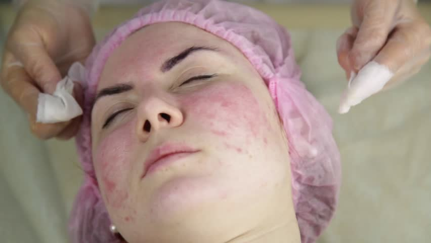 Squeezing pimple acne treatments. Young woman receiving beauty face therapy of cleaning pimple. | Shutterstock HD Video #34903570
