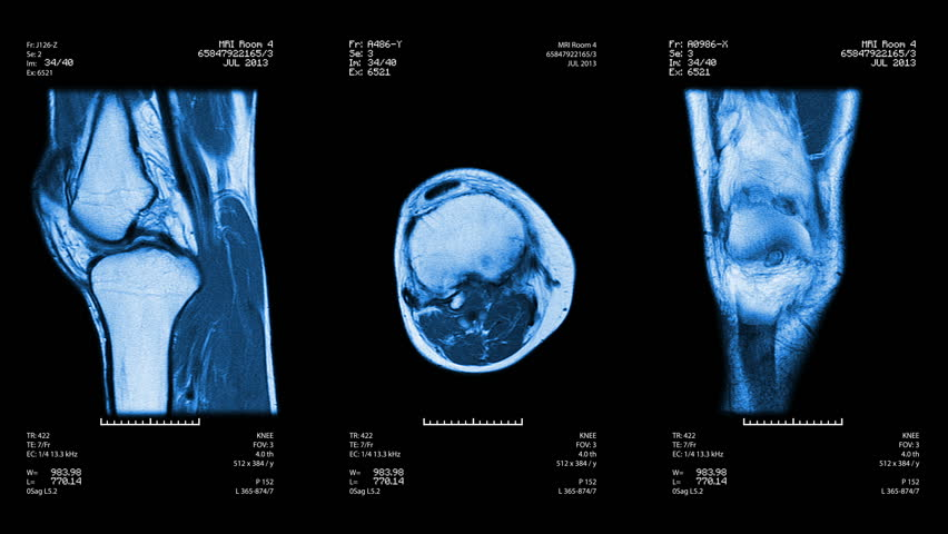 Three knee views of MRI scan. Loopable. Blue. See more options in my portfolio. #4412876