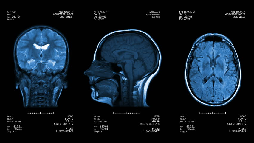 Three head views of MRI scan. Loopable. Blue. See more color options in my portfolio. #4412879