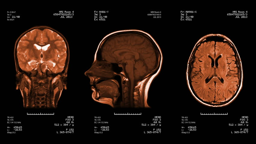 Three head views of MRI scan. Loopable. Amber. See more color options in my portfolio. #4412882