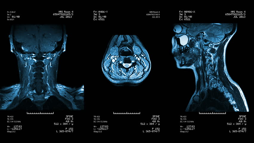 Three neck views of MRI scan. Loopable. Blue. See more color options in my portfolio. #4540220