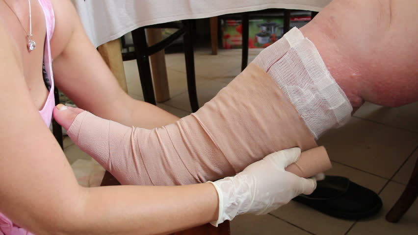 Wound - venous ulcer, stasis ulcers, varicose ulcers, ulcus cruris. 7