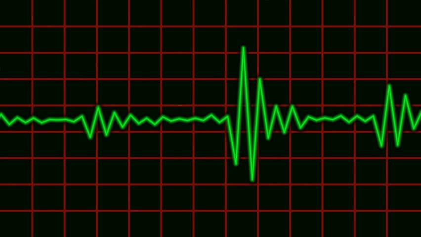 DJ Beats Pulsing Waveform on a black background