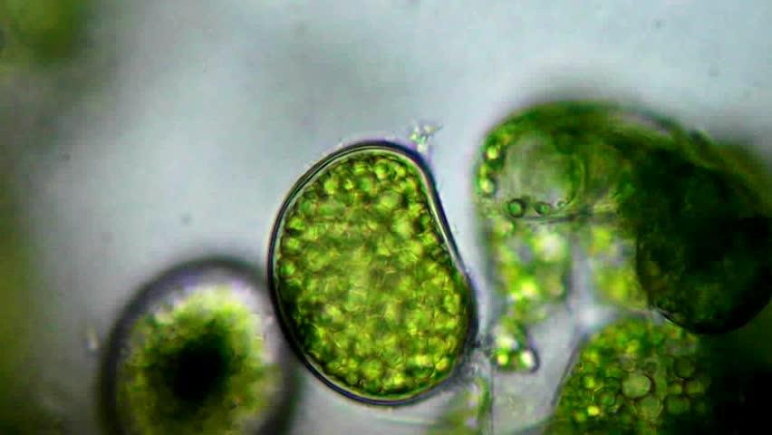 Seaweed (algae) under microscope, magnification 100X
