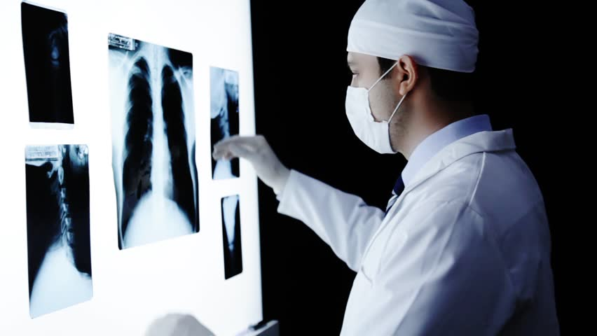 Doctor Examining X ray Searching Diagnosis | Shutterstock HD Video #5472662