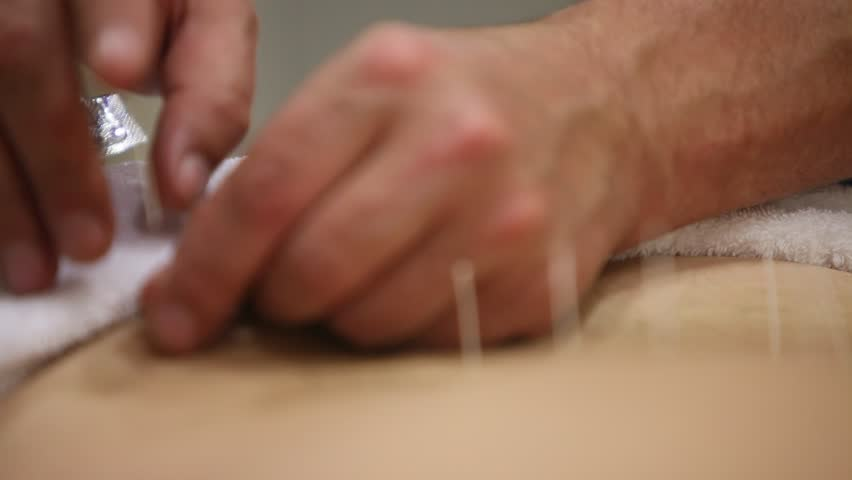 acupuncture medical procedure