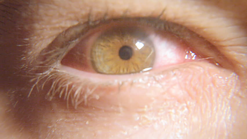 The eye of a very sick and tired man. Macro close-up shot.    Shutterstock HD Video #6939367