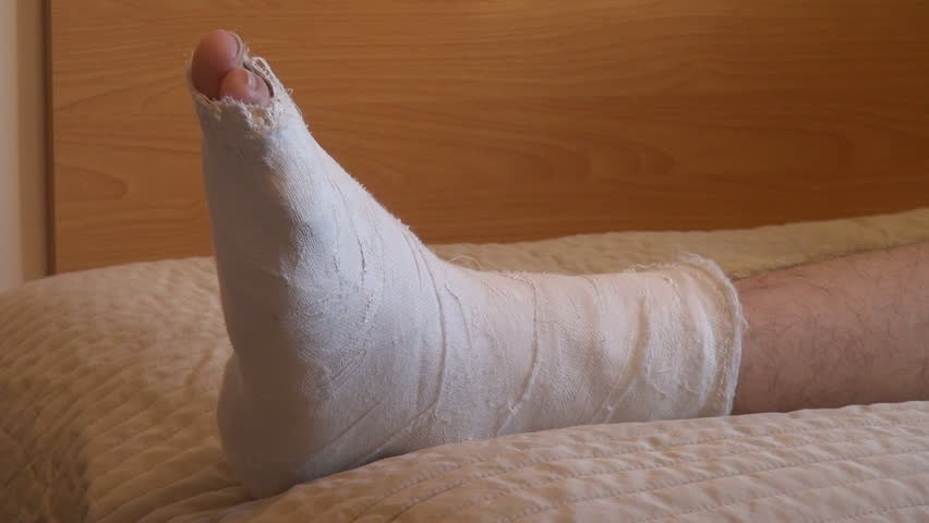 Teenage boy making exercises, broken leg, plaster cast, recovery, muscle, bed