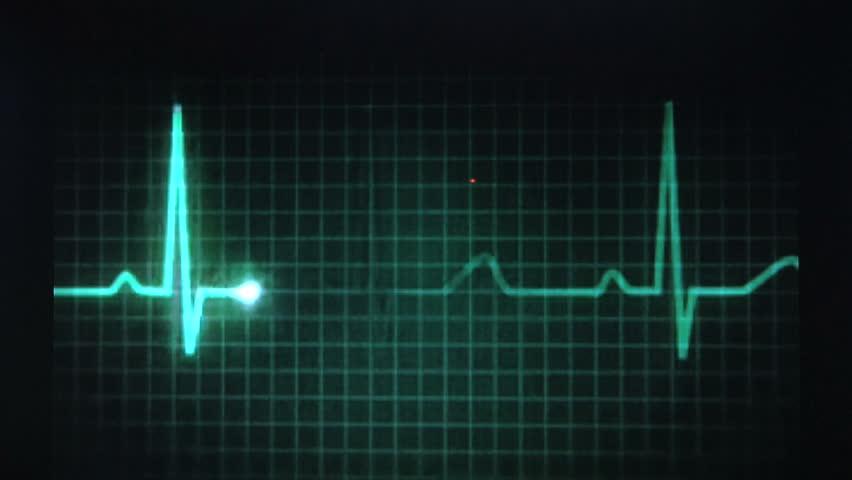 Animated EKG Display