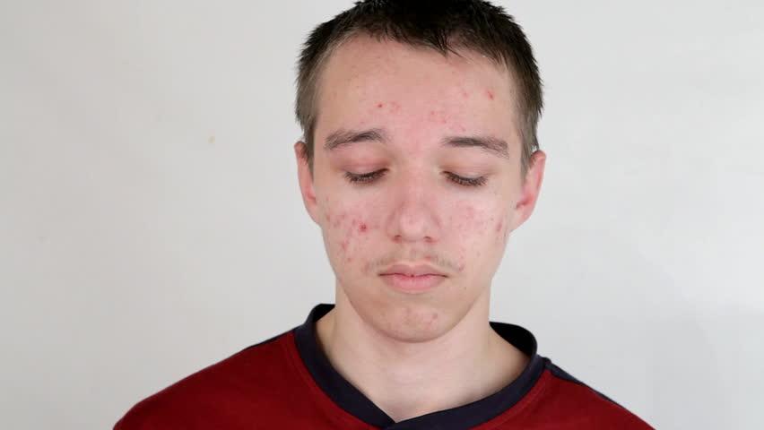 Teenage boy with puberty acne problem